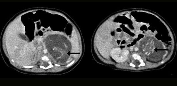 10022015---ultrassom-mostra-a-espinha-dorsal-dos-dois-fetos-encontrados-no-ventre-de-um-bebe-recem-nascido-em-hong-kong-em-2010-o-caso-so-foi-divulgado-em-2015-1423598944145_615x300