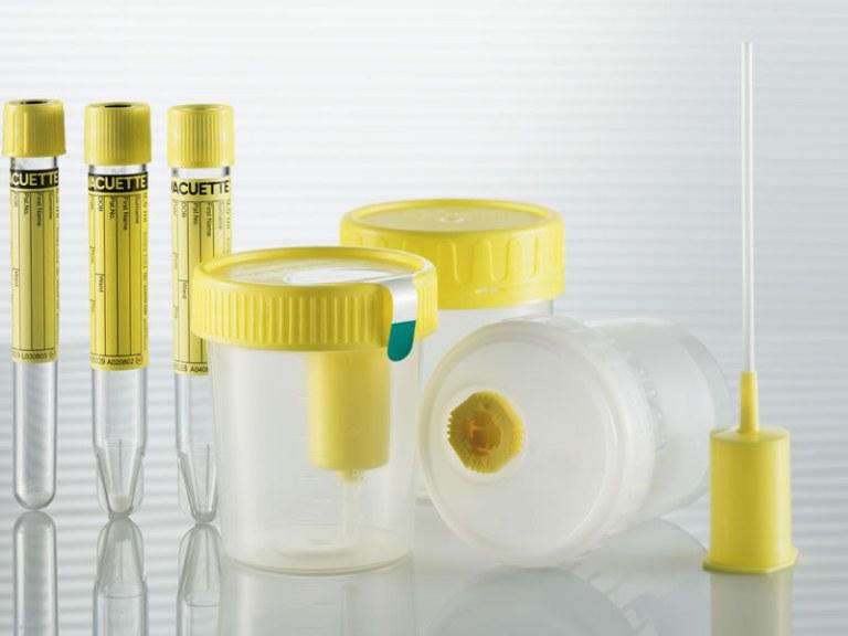 1400012433_coleta_urina